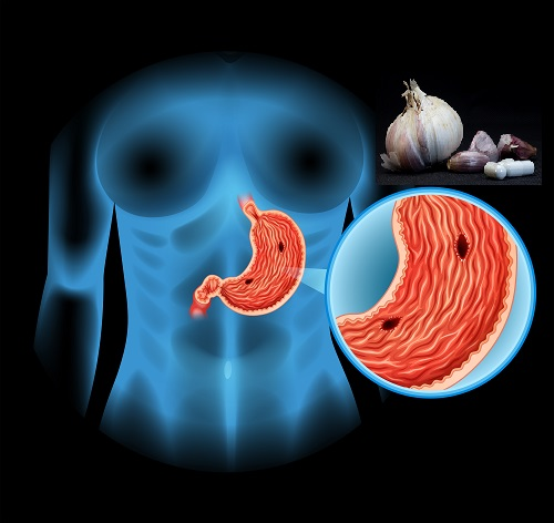 Ajo y úlcera de estómago